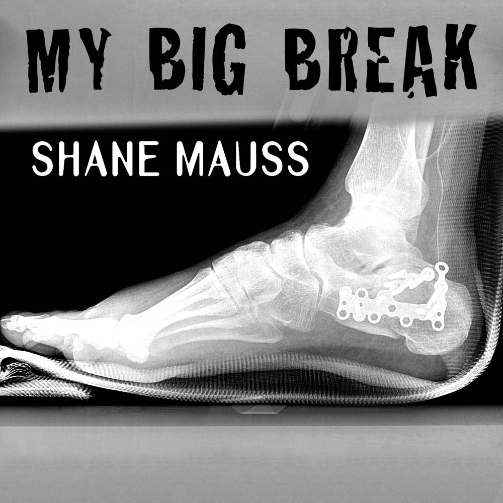 Shane Mauss My Big Break
